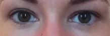 Augen neu