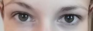 Auge vorher