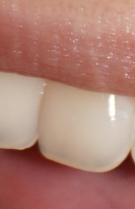 Zahn danach